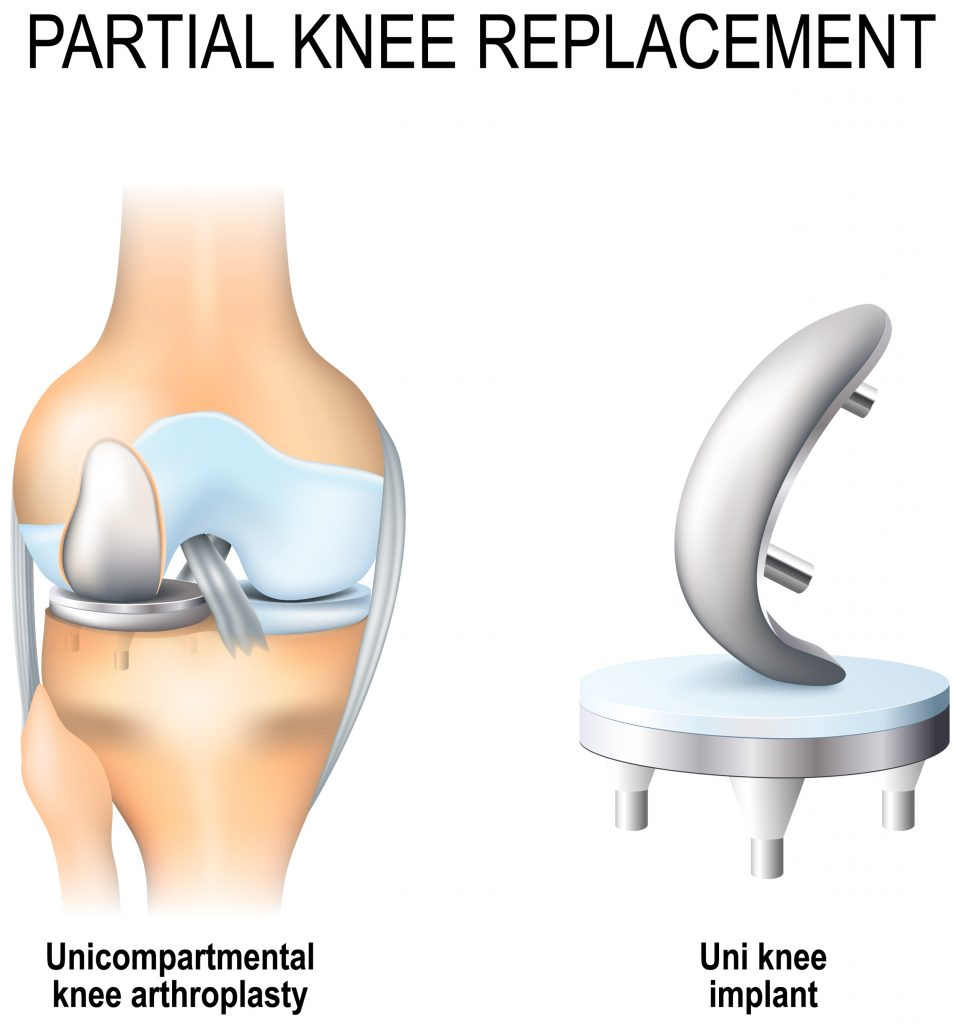 การผ่าตัดเปลี่ยนข้อเข่าเทียมเฉพาะส่วน (Partial knee replacement)