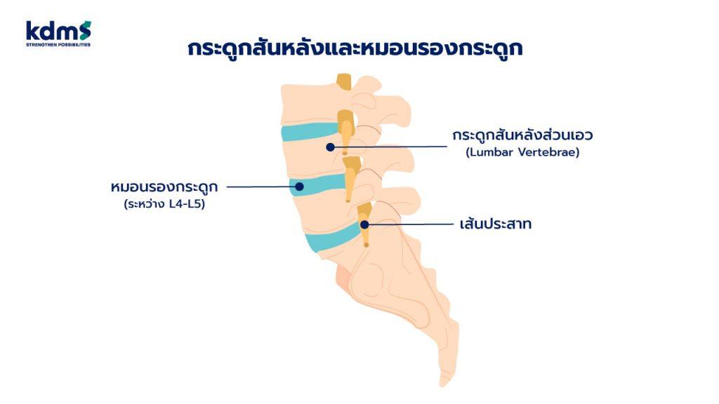 กระดูกสันหลังและหมอนรองกระดูก