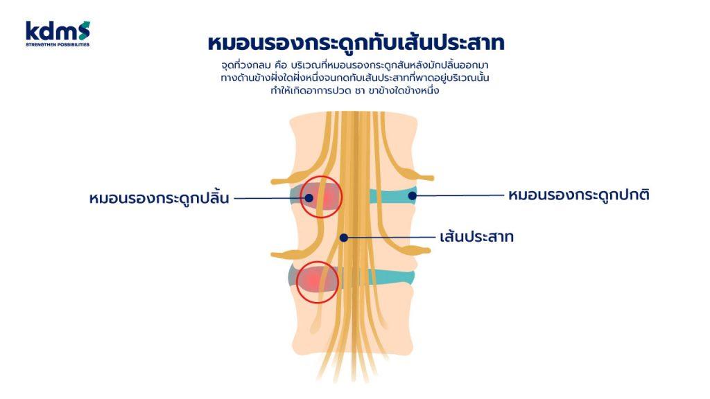 หมอนรองกระดูกทับเส้นประสาท